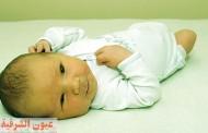 الصفرا عند حديثي الولاده (اليرقان)